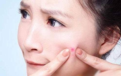脸上痘痘疯长的原因  脸上长痘的调养方法