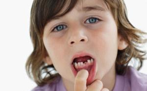 小孩蛀牙怎么办