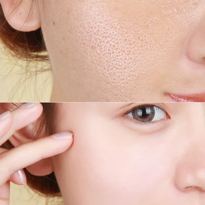 毛孔粗大是永久的吗?面部毛孔粗大怎么如何改善?