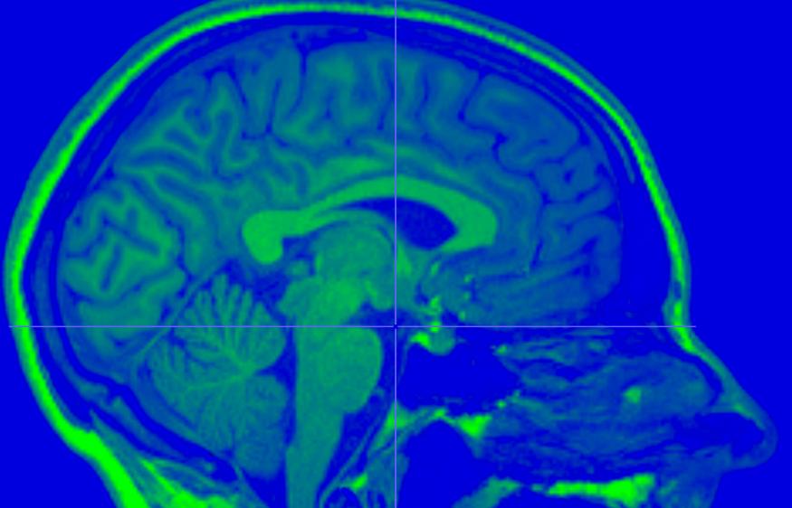 研究人员利用大脑核磁共振图像建立BOLD5000人类视觉神经成像数据集