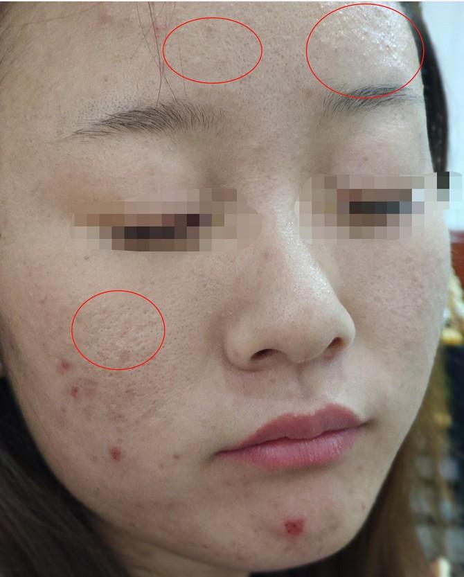 什么是闭口什么是粉刺?闭口和粉刺的区别?闭口粉刺去除?