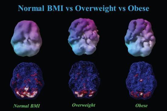 体重对大脑的影响十分惊人:肥胖使大脑萎缩