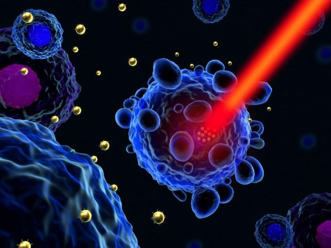 科学家首次展示一种在癌细胞内生物合成等离子金纳米粒子的技术