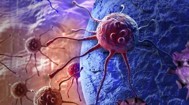 科学家开发一种更准确地光学诊断皮肤癌的方法